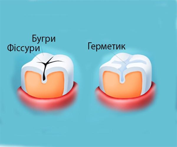 """""""Герметизація фісур"""""""
